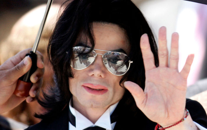 Michael Jackson And Vitiligo What We Know About This Mysterious Disease