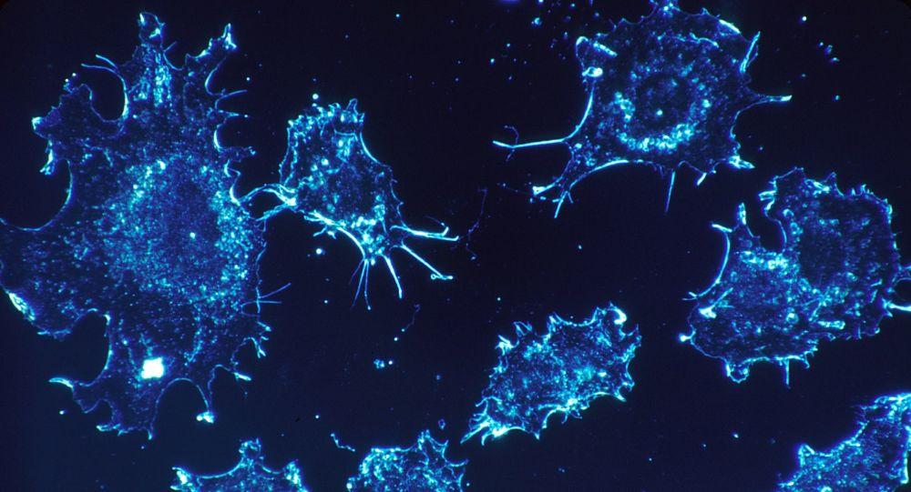 Las células cancerosas en una imagen