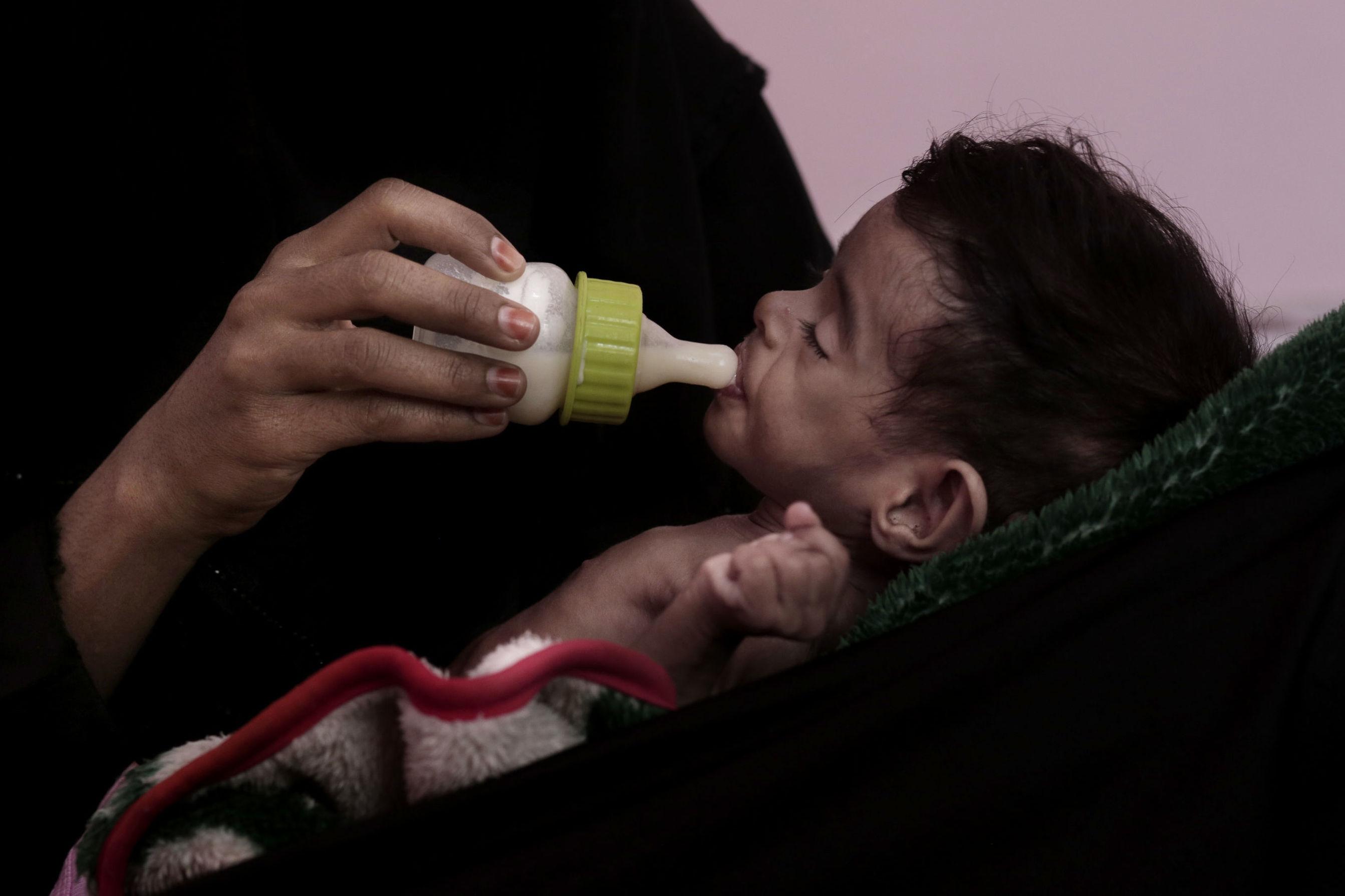 La guerra y el bloqueo saudí son la principal causa del hambre y la desnutrición infantil en Yemen