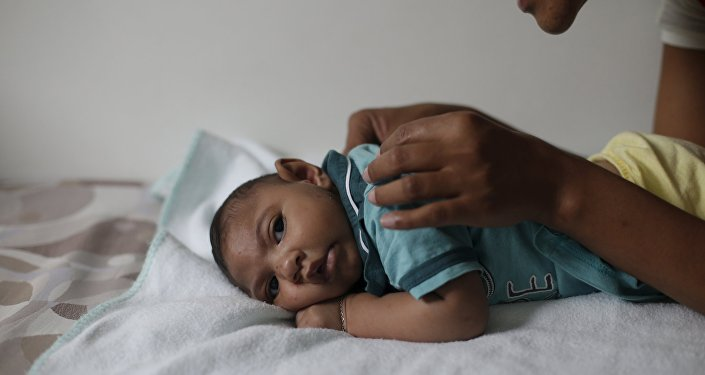 Bebé con microcefalia