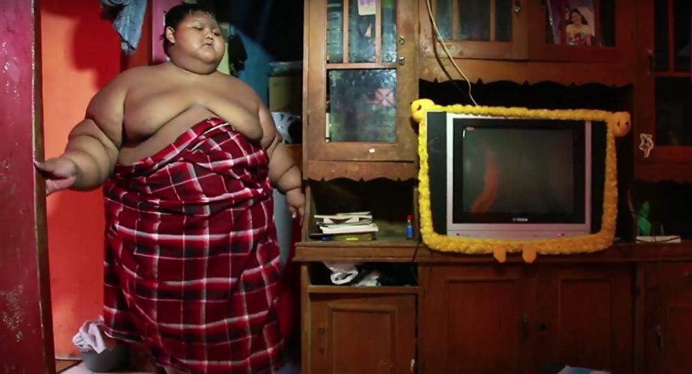 Arya Permana, un niño indonesio que pesa 192 kilos