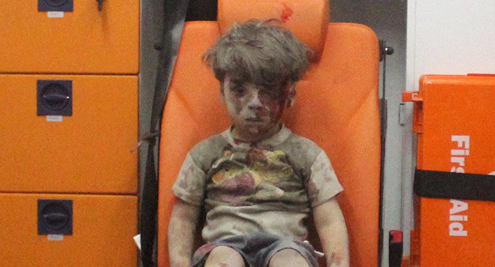 Omran Daqneesh con su rostro ensangrentado se convirtió en la imagen de la guerra a mano de los principales medios occidentales