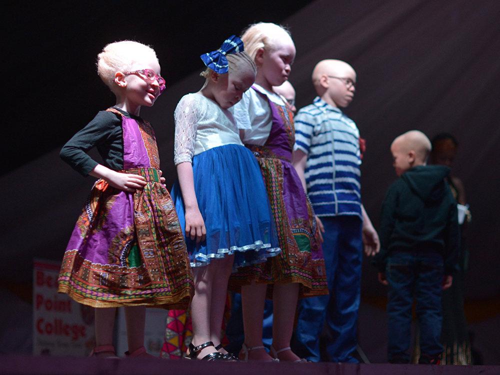 El primer concurso de belleza en la historia de los albinos, en Kenia