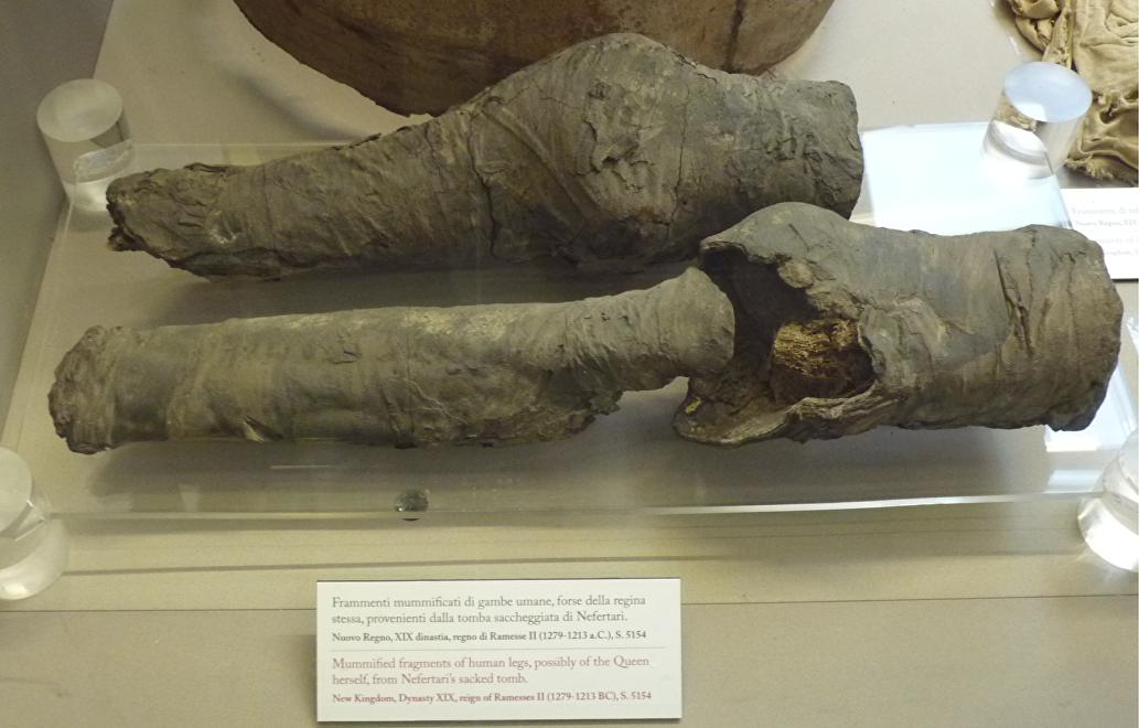 Las rodillas momificadas en exhibición en el Museo Egipcio de Turín (Italia)