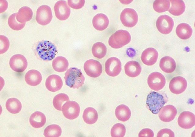 Muestra de sangre contaminada con malaria
