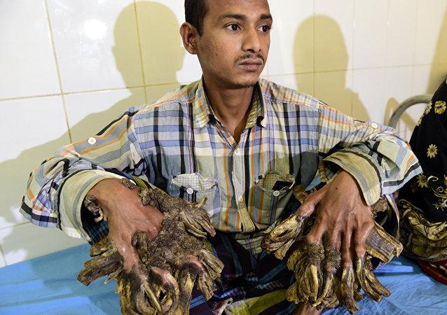 Abul Bajandar, el 'hombre árbol' de Bangladesh