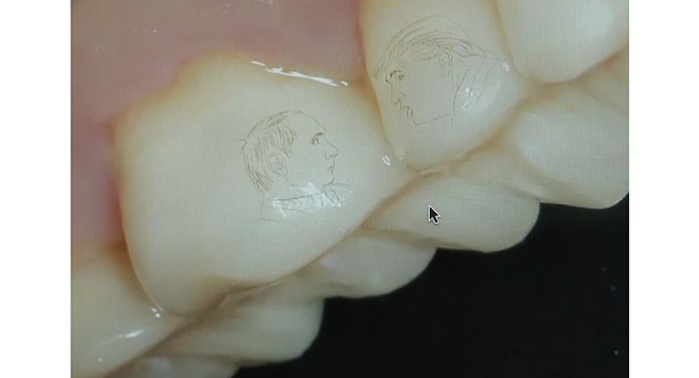 Un ruso se tatúa las caras de Putin y Trump… en sus dientes
