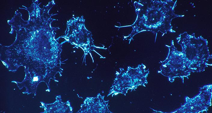 Células cancerígenas (imagen referencial)
