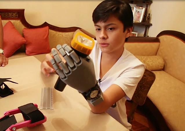 Leonardo Viscarra utiliza su prótesis