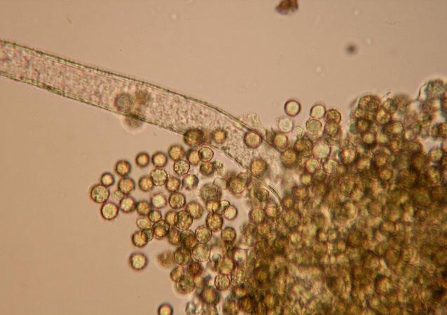 Muestras de aflatoxinas, una peligrosa sustancia capaz de provocar cáncer (imagen referencial)