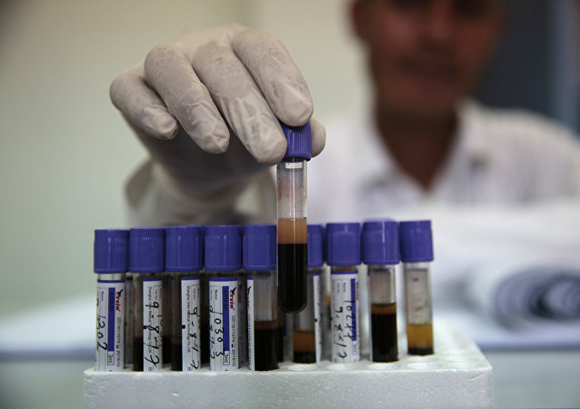 Análisis de sangre en Yemen (imagen referencial)