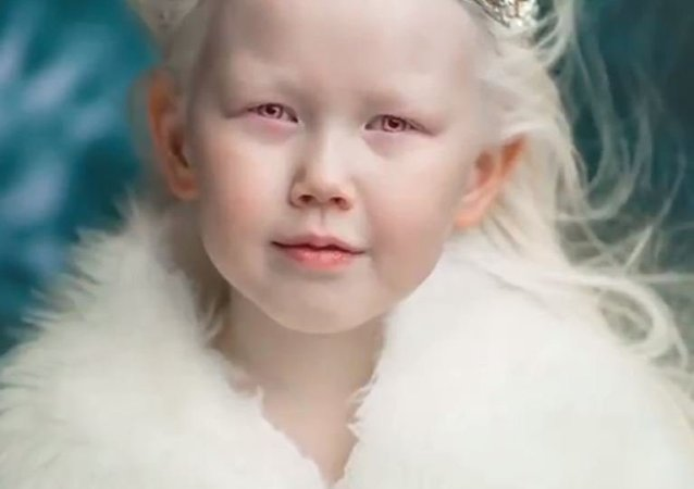 La 'niña de porcelana' rusa
