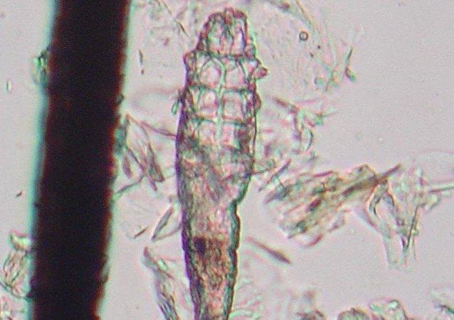 Un ácaro Demodex, imagen referencial