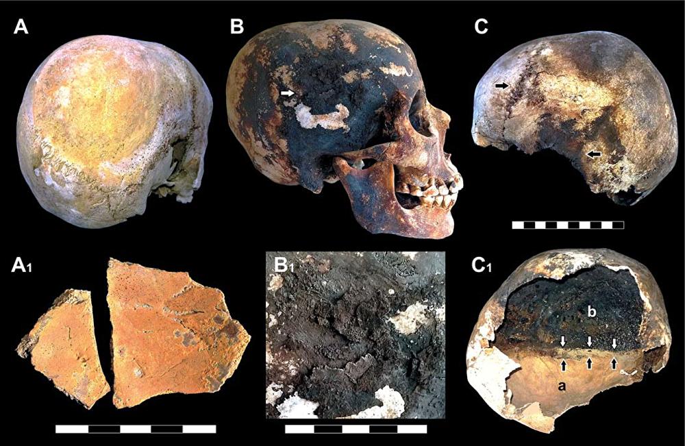 Incrustaciones minerales rojas y negras detectadas en los cráneos de las víctimas