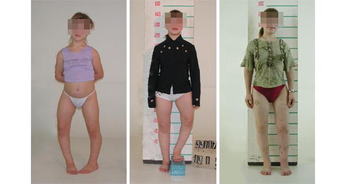 Paciente de 14 años con deformaciones congénitas de las extremidades inferiores, estatura de 135 cm. Se realizó una corrección de las piernas con alargamiento de siete centímetros. La estatura tras el tratamiento es de 143 cm.