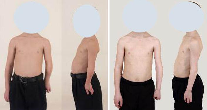 Paciente de 16 años con displasia postraumática de codo. Alargamiento de ocho centímetros.