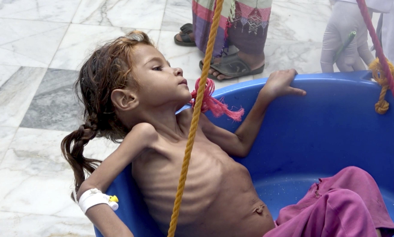 Niña yemení sufre de malnutrición, consecuencia  de la guerra y el bloqueo de Arabia Saudí, 25 de agosto de 2018, Hajjah (Yemen)