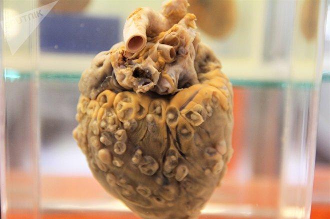 Pieza del Museo de patologías veterinarias de la UNAM. Corazón con cisticercosis.