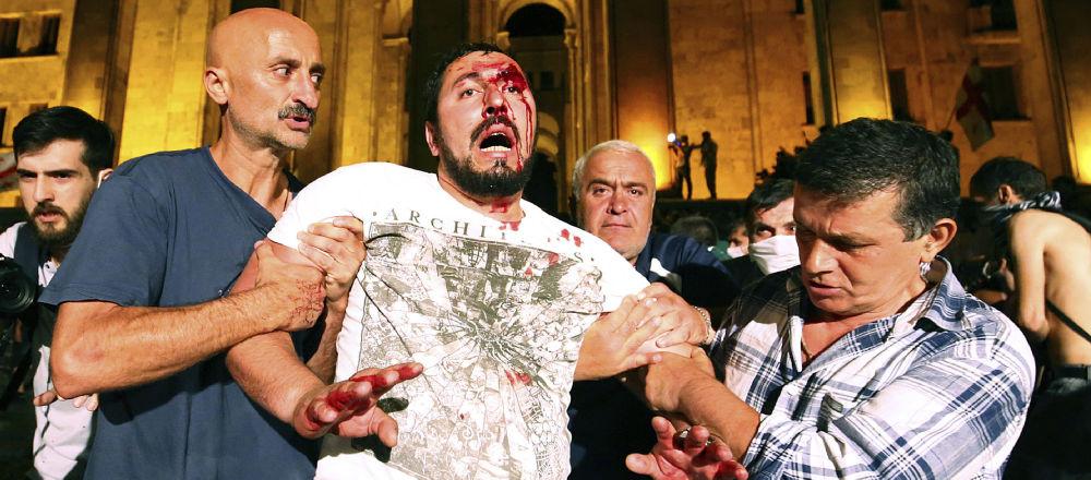 Manifestantes ayudan a un hombre herido durante las protestas en Tiflis