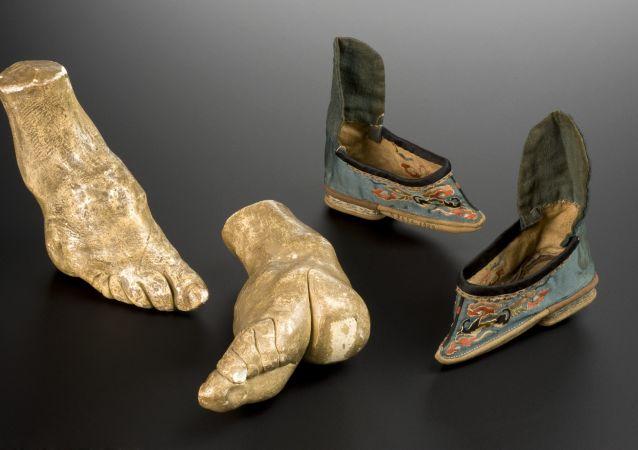 Modelo del pie deforme por el vendaje de pies de loto