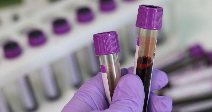 Muestra de sangre en laboratorio médico