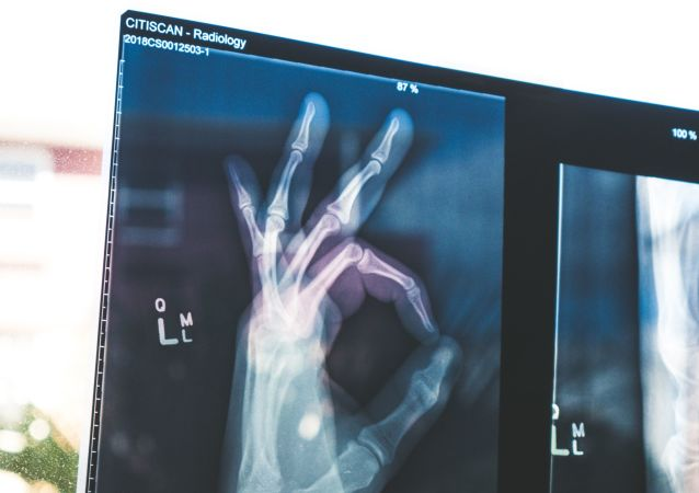 Radiografia de la mano (imagen referencial)
