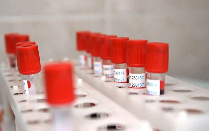 Desarrollo de la vacuna contra COVID-19