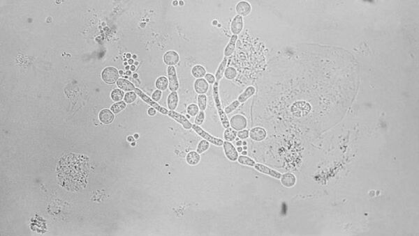 Candida albicans - Sputnik Mundo