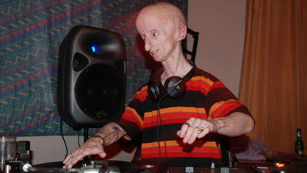 Una persona con progeria - Sputnik Mundo