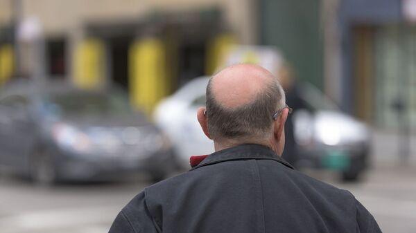 Un hombre con alopecia, imagen ilustrativa - Sputnik Mundo