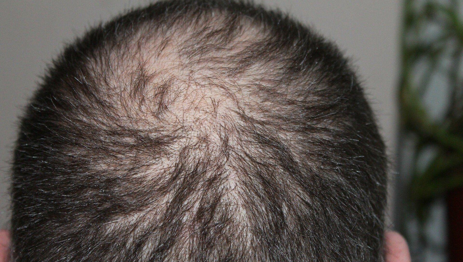 La cabeza de un hombre - Sputnik Mundo, 1920, 05.02.2021