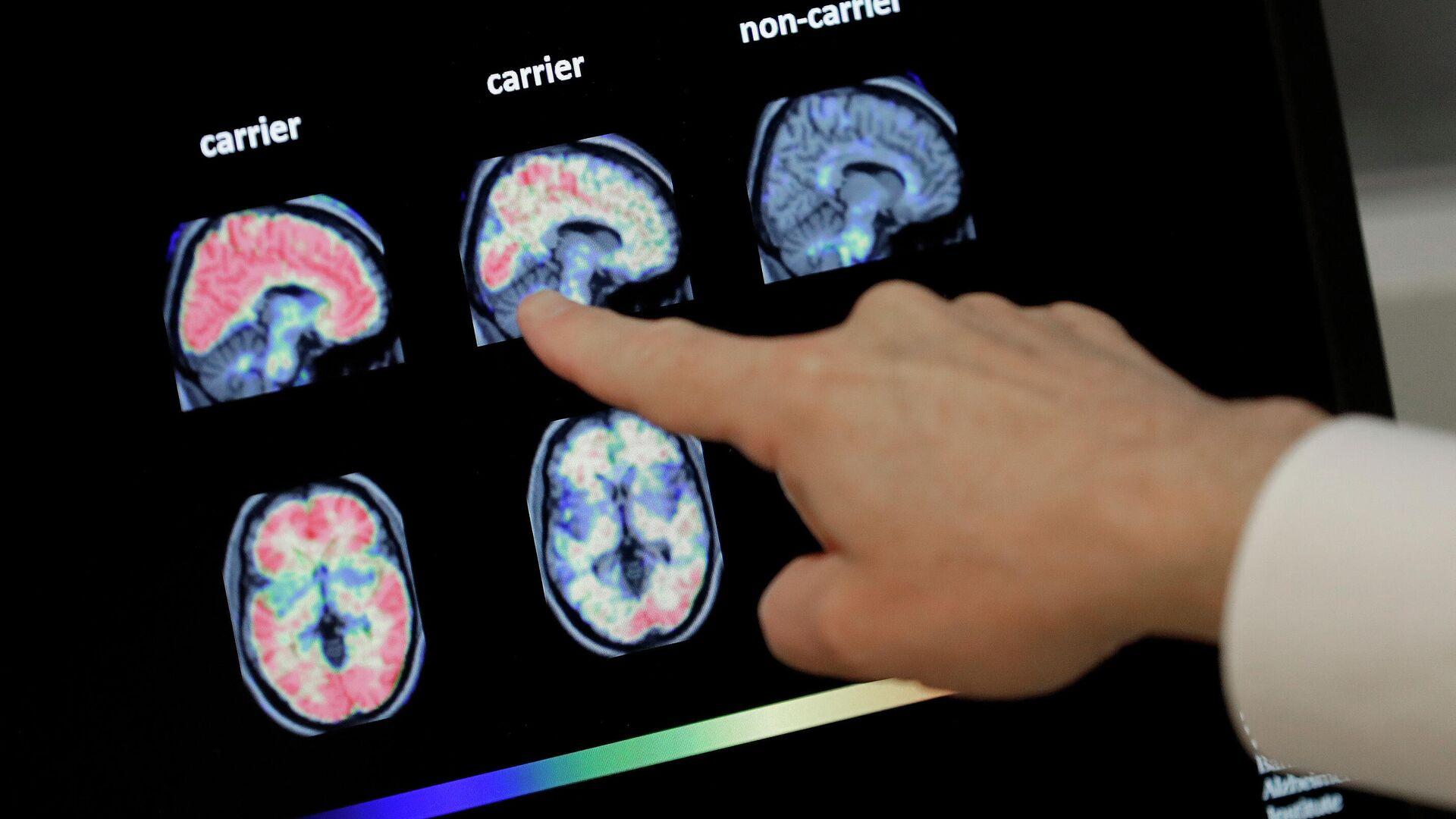 En esta foto de archivo del 14 de agosto de 2018, un médico observa una tomografía computarizada de un cerebro.  - Sputnik Mundo, 1920, 15.04.2021