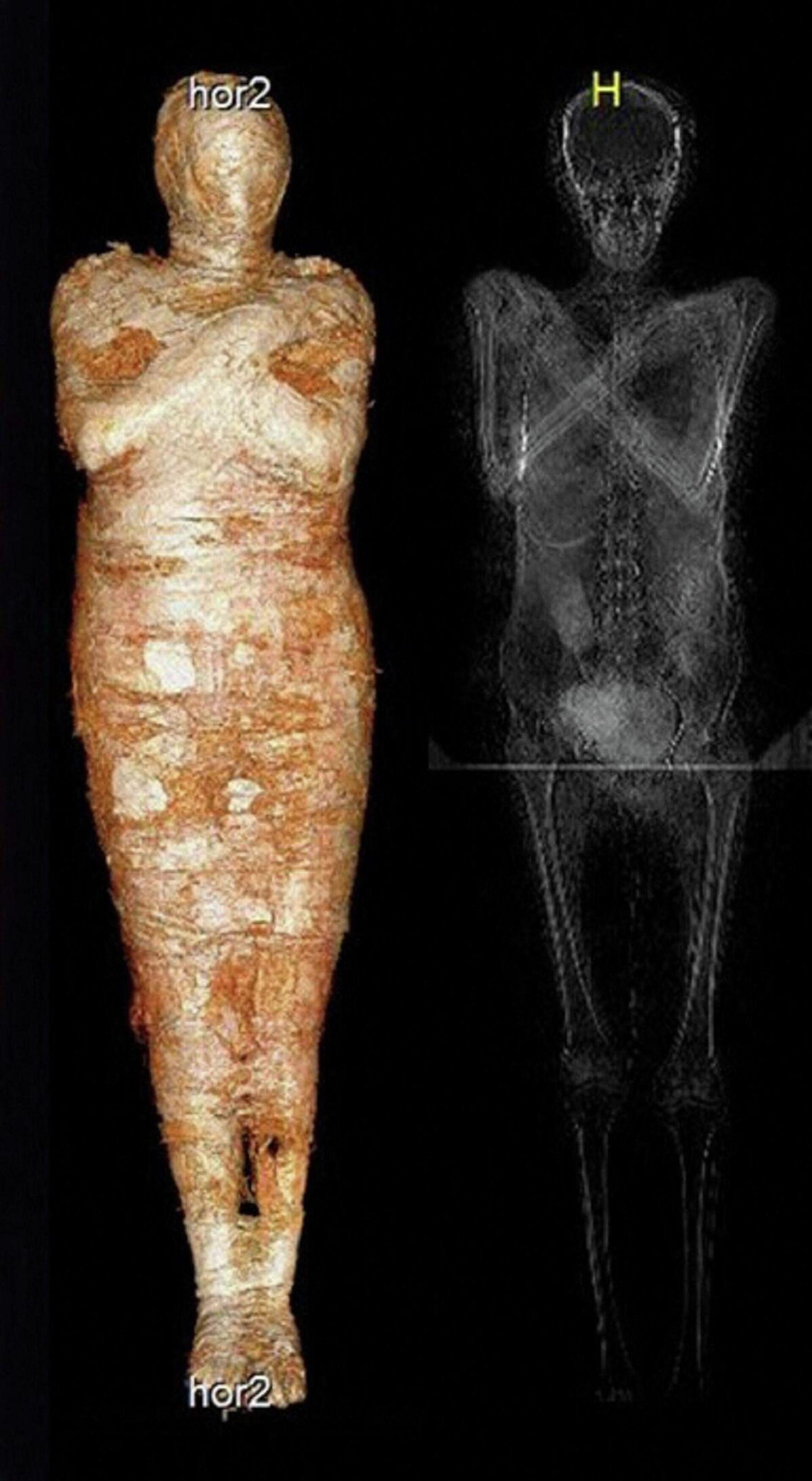 Las imágenes de rayos X de la primera momia egipcia de una mujer embarazada que se conoce hasta ahora - Sputnik Mundo, 1920, 30.04.2021