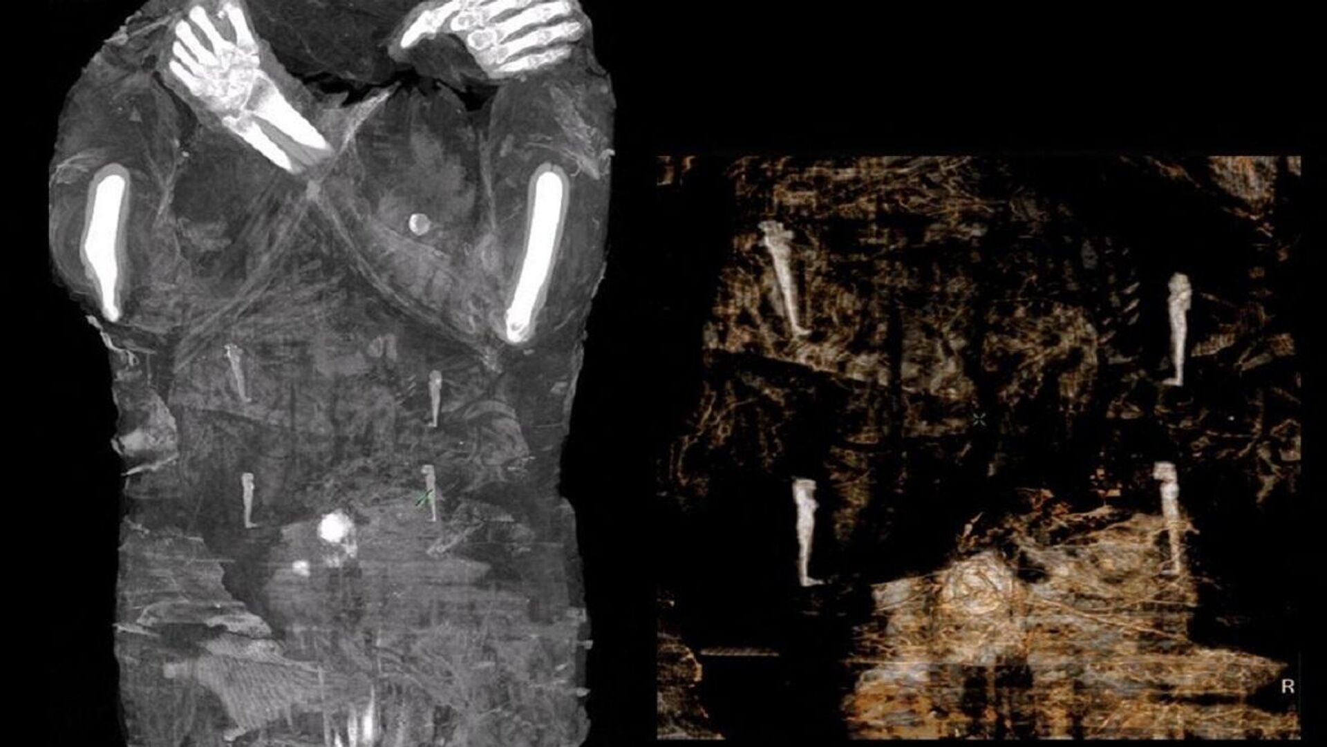 Las imágenes de rayos X de la primera momia egipcia de una mujer embarazada - Sputnik Mundo, 1920, 30.04.2021