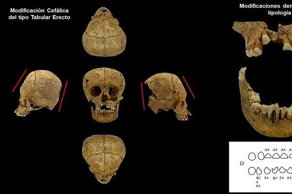 El cráneo de una mujer mexicana hace casi 14.000 años - Sputnik Mundo