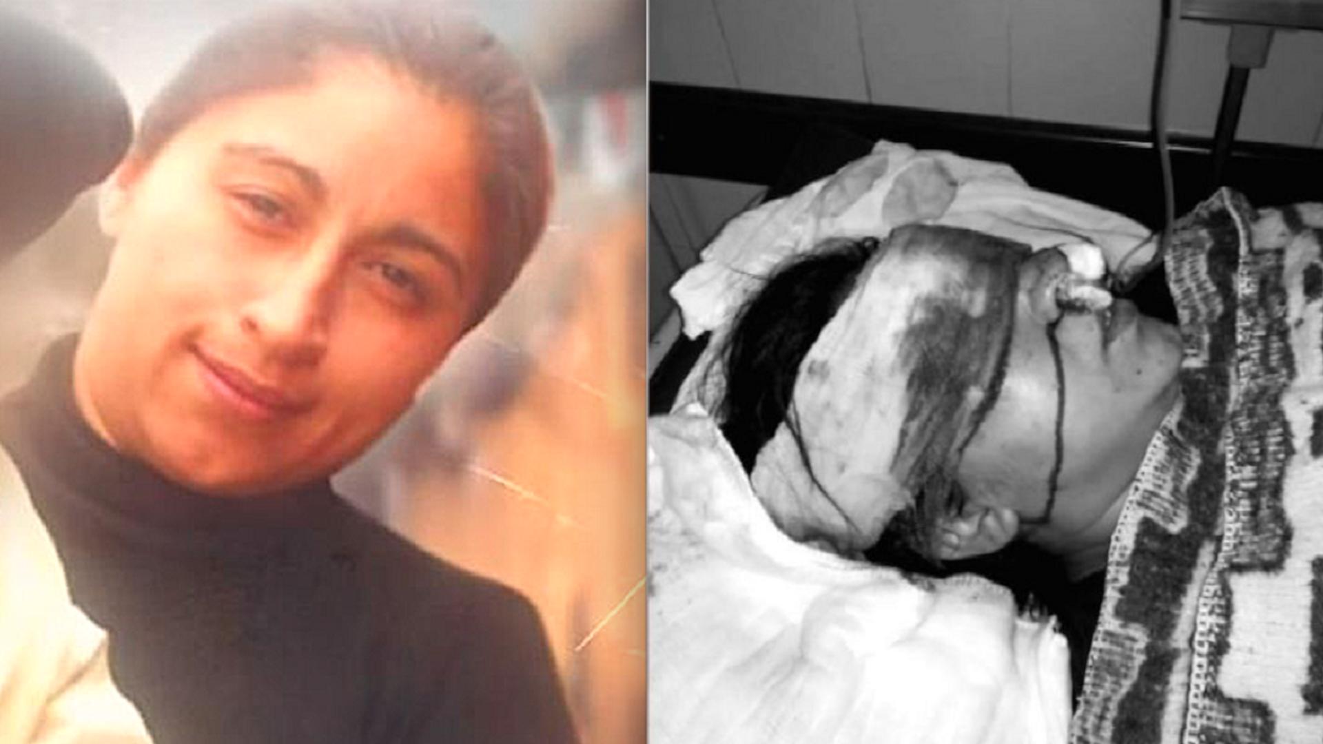 Fabiola Campillai Rojas, impactada en el rostro por una bomba lacrimógena arrojada por Carabineros - Sputnik Mundo, 1920, 14.06.2021