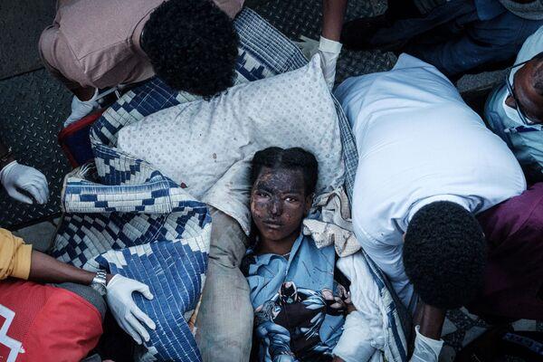 Una vecina de la localidad de Togoga de la provincia de Tigray (Etiopía) herida tras un bombardeo por el Ejército gubernamental contra un mercado local, en el cual murieron más de 50 personas. - Sputnik Mundo