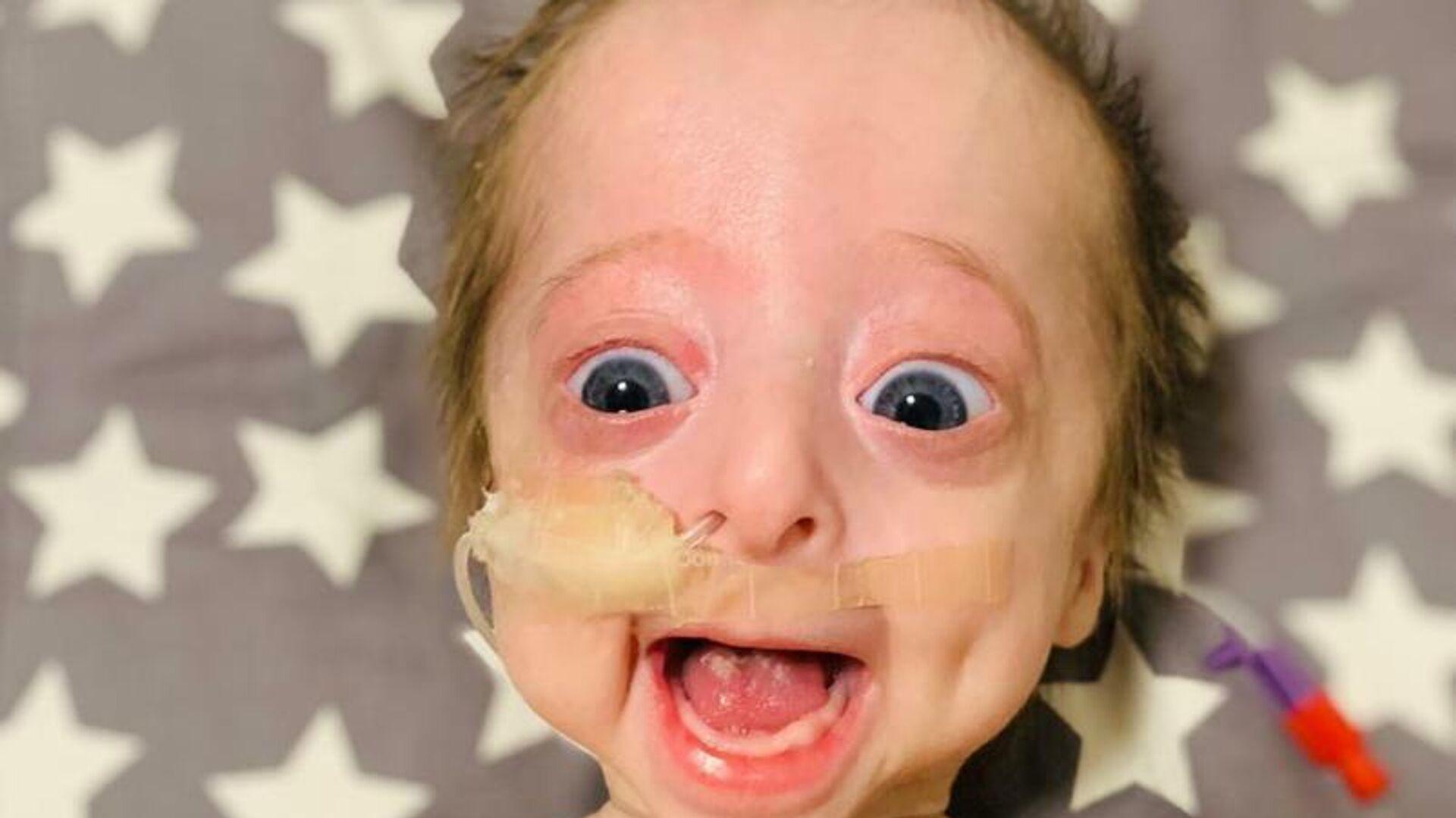 Vito, bebé argentino con progeria - Sputnik Mundo, 1920, 09.08.2021