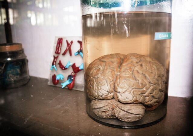 Cerebro en una jarra