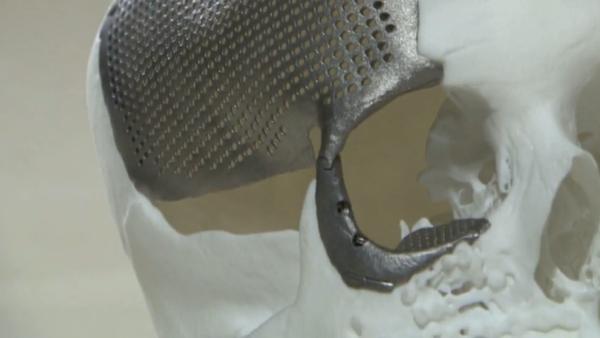 Reconstruyen el cráneo de una joven con titanio impreso en 3D - Sputnik Mundo