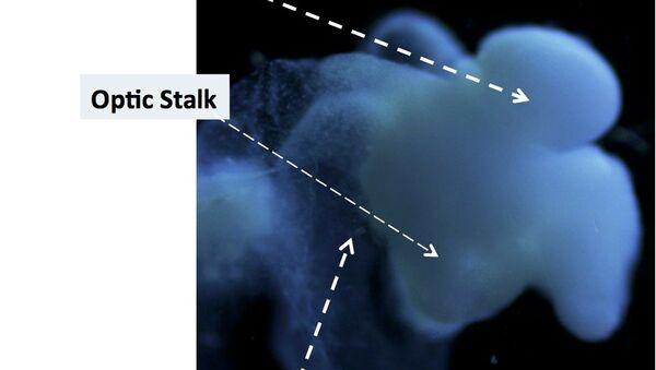 Científicos de EEUU cultivan un cerebro humano - Sputnik Mundo