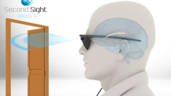 Implante de visión artificial Argus II - Sputnik Mundo