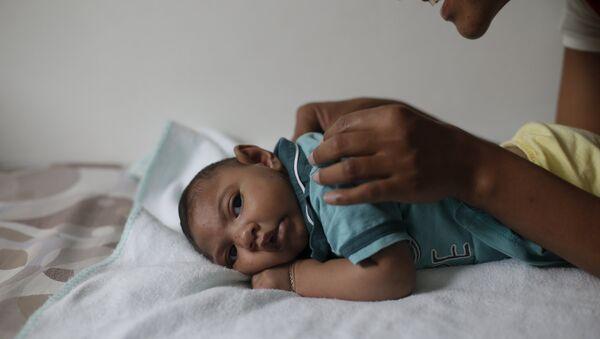 Bebé con microcefalia - Sputnik Mundo