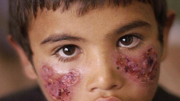 Un niño enfermo de leishmaniasis - Sputnik Mundo