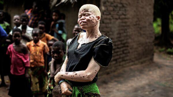 Mainasi Issa, una albina de Malaui - Sputnik Mundo