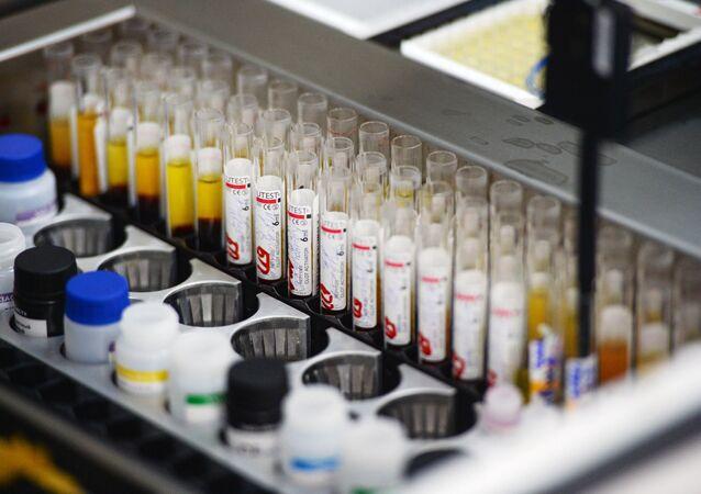 Pruebas de detección del VIH (archivo)
