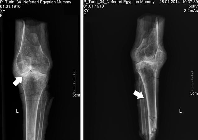 Radiografías de las rodillas de Nefertari