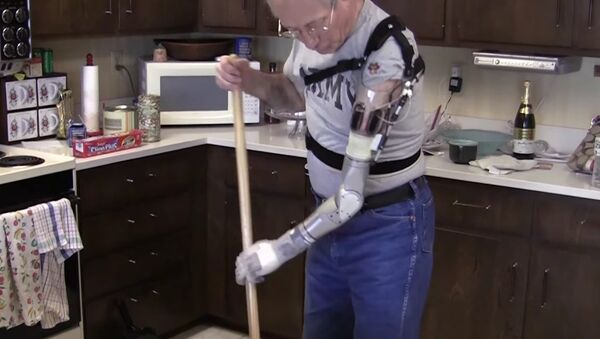 Bionic arm - Sputnik Mundo