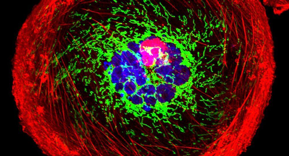 Célula de cáncer