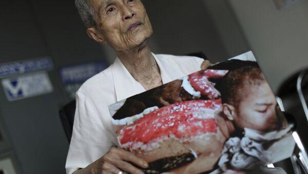 Sumiteru Taniguchi, superviviente del bombardeo atómico sobre Nagasaki ocurrido el 9 de agosto de 1945. La foto fue tomada en enero de 1946 y es hoy día exhibida en el Museo de la Bomba Atómica de Nagasaki, acompañada de las palabras de Taniguchi que dicen: Quiero que usted entienda, aunque sólo sea un poco, el horror de las armas nucleares. - Sputnik Mundo